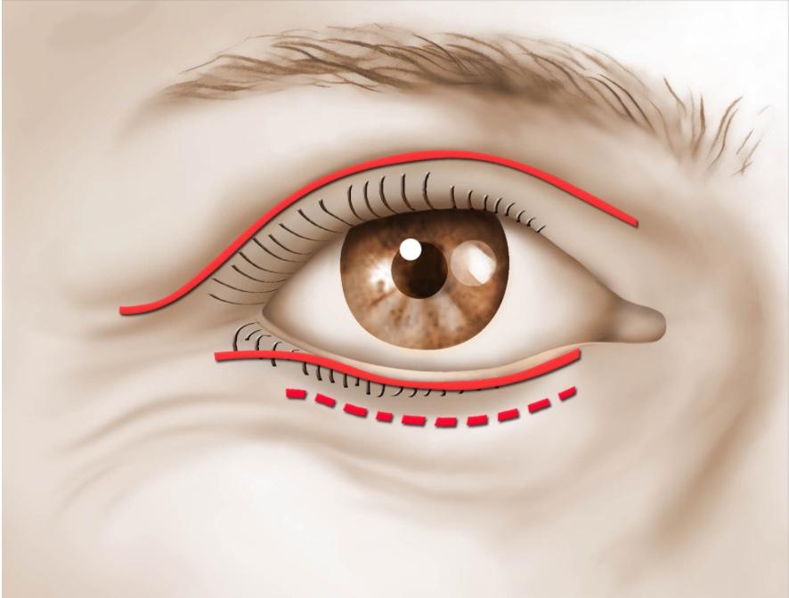 Incision selon le type de blépharoplastie