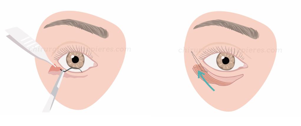 Les étapes chirurgicales de la canthopexie